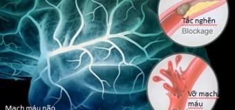 Giải mã 4 quan niệm sai lầm về tai biến mạch máu não