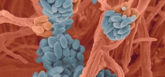 Mắc bệnh Viêm Xoang do nấm