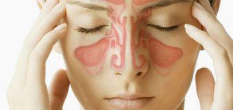 Đau nhức đầu do viêm xoang khiến người bệnh khổ sở