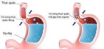 4 nguyên nhân gây bệnh trào ngược dạ dày