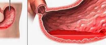Xuất huyết dạ dày (chảy máu dạ dày)