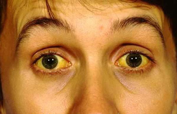 Vàng mắt là dấu hiệu của xơ gan cổ trướng