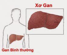 Biến chứng nguy hiểm của bệnh xơ gan