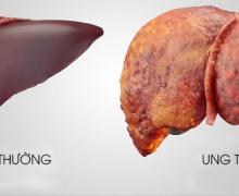 Nguyên nhân và triệu chứng bệnh ung thư gan