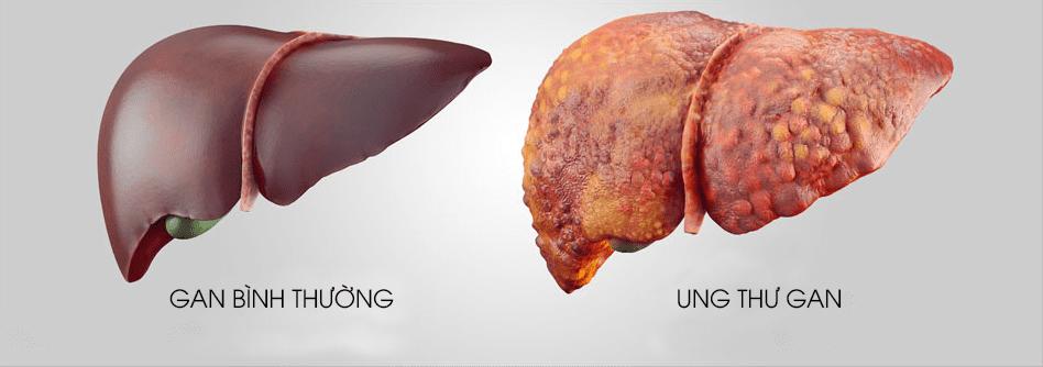 Phương pháp điều trị bệnh ung thư gan
