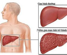 Xơ gan là gì? Nguyên nhân gây xơ gan?