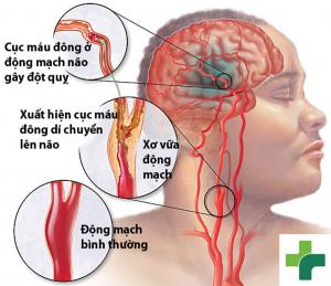 Rối loạn tiền đình & thiếu máu não - nguyên nhân và hướng điều trị - Ảnh 1