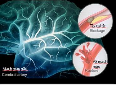 Giải mã 4 quan niệm sai lầm về tai biến mạch máu não - Ảnh 3