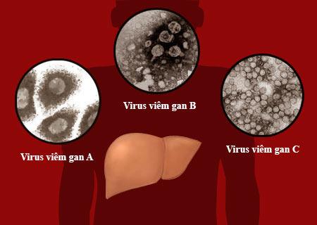 Nguyên nhân gây bệnh viêm gan A
