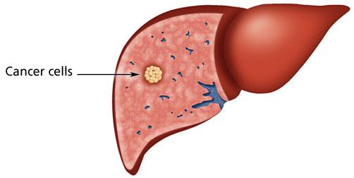 U tuyến gan là gì?