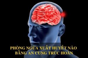 Phòng ngừa xuất huyết não bằng An Cung Trúc Hoàn