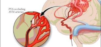 Điểm danh các yếu tố ảnh hưởng đến sự hồi sau tai biến mạch máu não