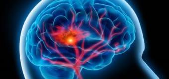 Đột quỵ xuất huyết não – bệnh nguy hiểm khó lường