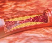 Một số triệu chứng cảnh báo tắc nghẽn mạch máu não