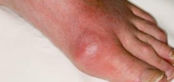 Bệnh gout và tính di truyền của bệnh