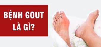 Dấu hiệu thường thấy của bệnh gout