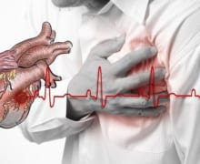 Dân văn phòng và nguy cơ mắc bệnh tim mạch