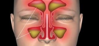 Bệnh viêm xoang và cách phòng tránh