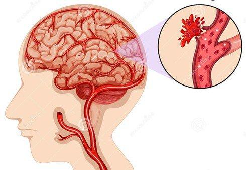 tử vong xuất huyết não
