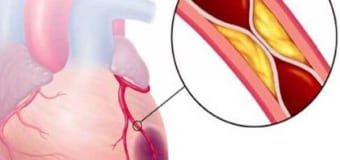 Các bệnh về tim mạch và các triệu chứng