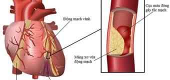 Thiếu máu cơ tim nguy hiểm như thế nào?